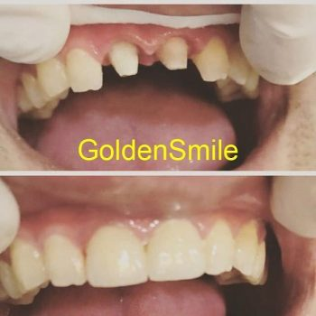 İmplant   Golden Smile Dent